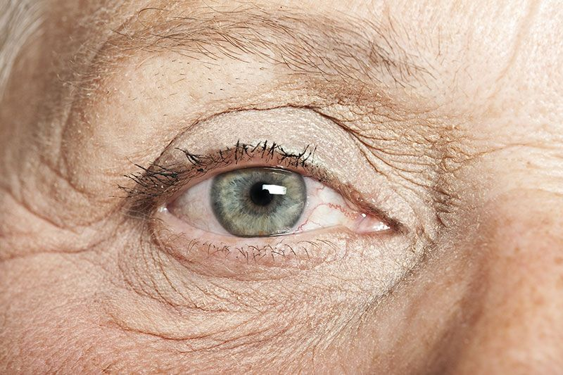 Laser Eye Surgery is not always the best option for those over 40 Image