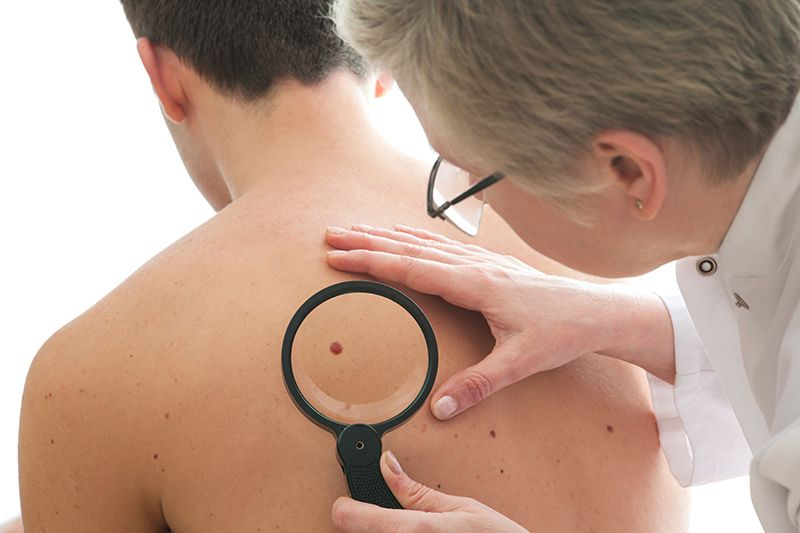 How to Identify the 5 Different Types of Melanoma