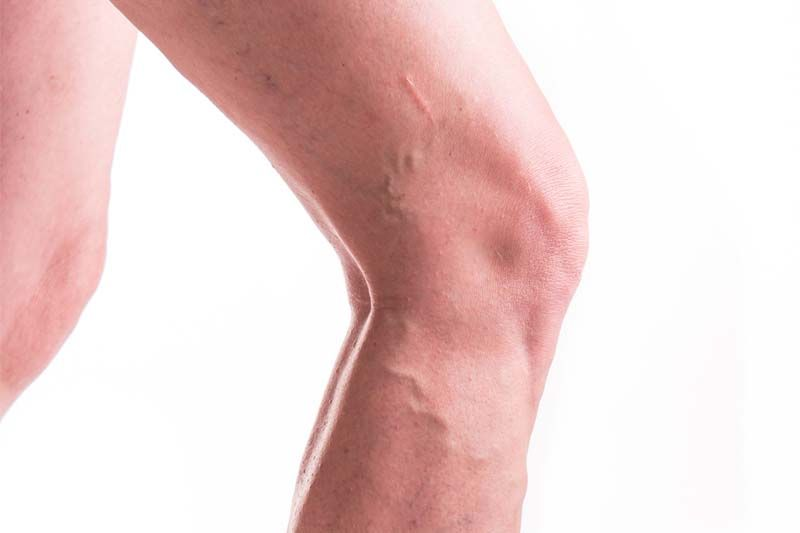 NICE Updates NHS Guidelines for Treating Varicose Veins Image