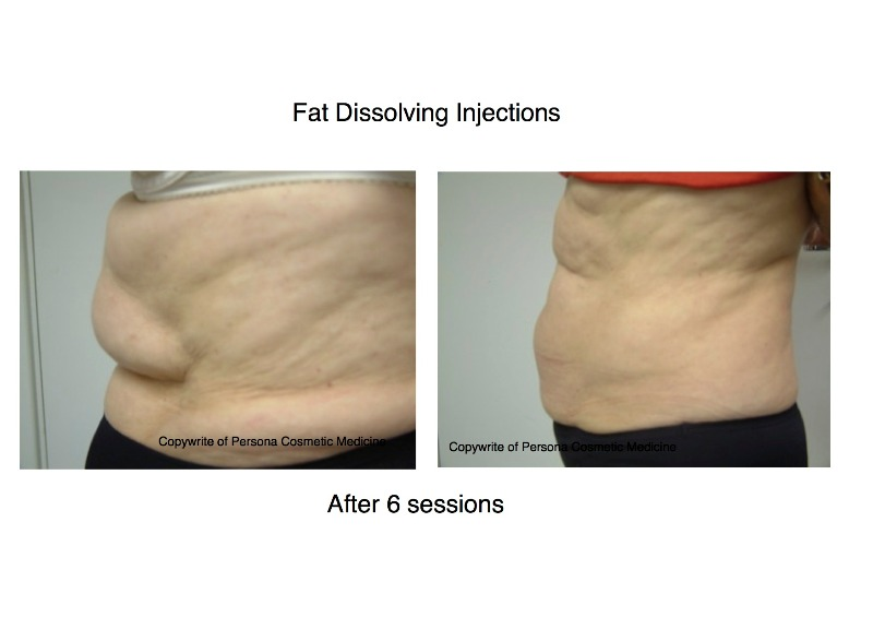 Before & After Fat Dissolving Injections