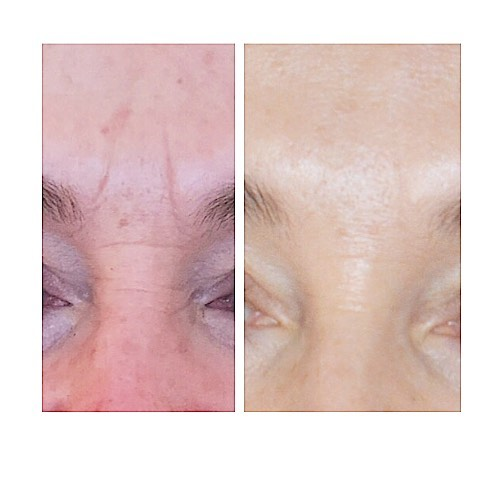 Frown line - Wrinkle relaxing injections and a little Dermal filler to smooth