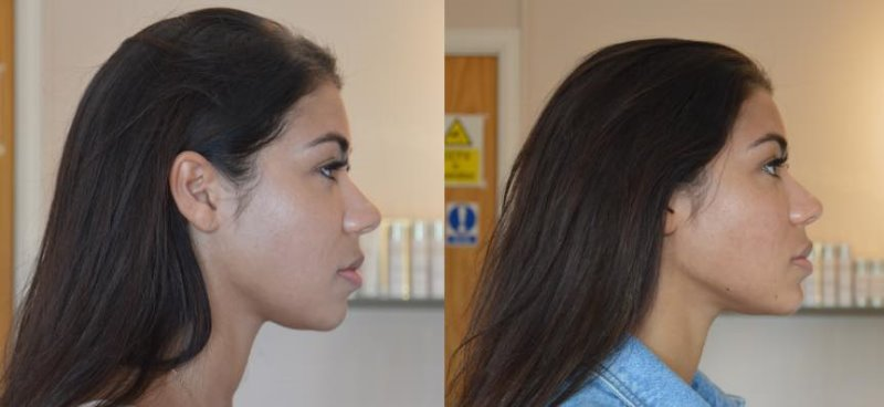 Jawline - Dermal filler to create a sharper edge and reshape chin