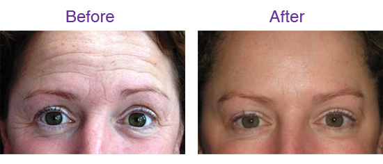 Before & After 'Botox' Treatment in the forehead