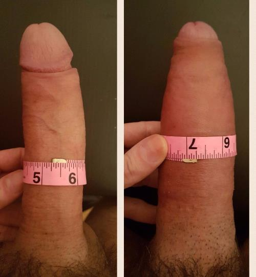 First penis reduction surgery are