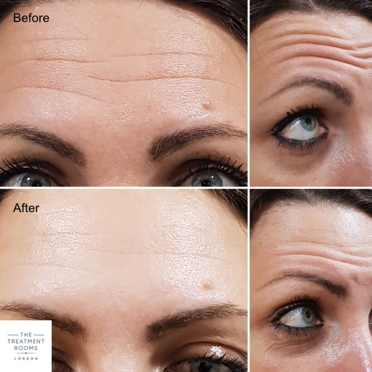 Anti-Wrinkle Injections Forehead Lines