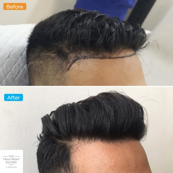 Right temporal hairline transplant