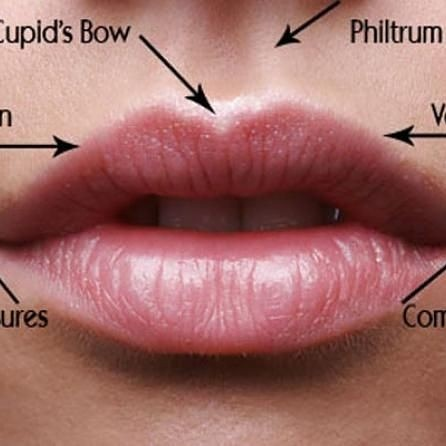Lip filler treatment areas