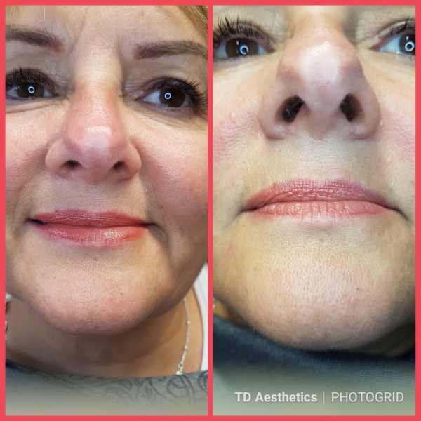 Dermal filler treatment for nose to mouth lines
