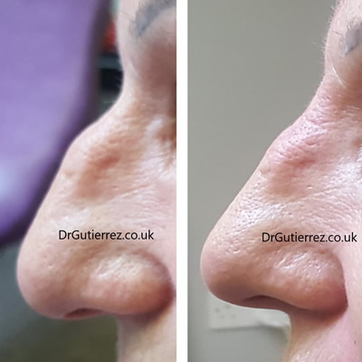 Nose filler by Dr Ricardo