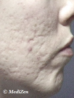 Before Microdermabrasion for Acne Scarring