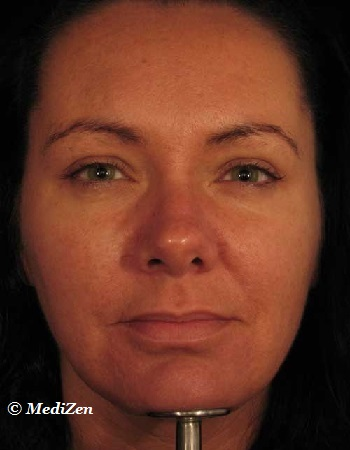 After Botox Treatment