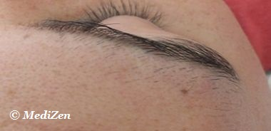 Before Electrolysis Treatment for Eyebrows