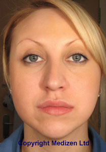 After Botox Jaw Treatment