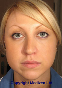 Before Botox Jaw Treatment