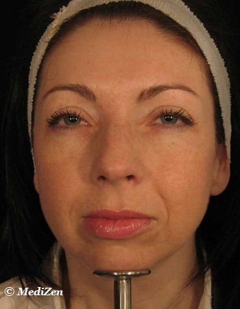 After Botox Forehead Treatment