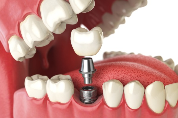 Dental Implants (Teeth) Information Image