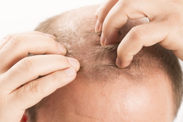 Drugs to Treat Hair Loss Information Image