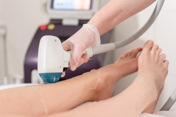 Laser and IPL Hair Removal Image