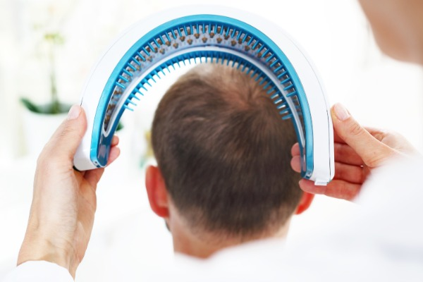 Laser Hair Loss Therapy Image