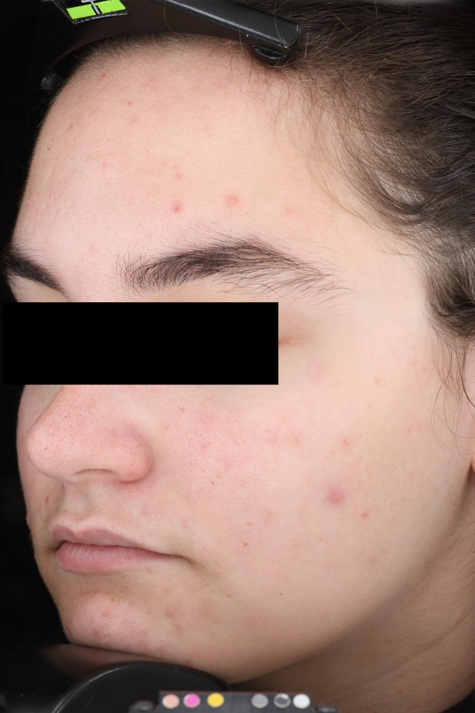 AlumierMD Before Treatment