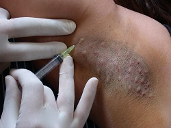 Hyperhidrosis - excessive sweating - treated with Botulinum Toxin Injections