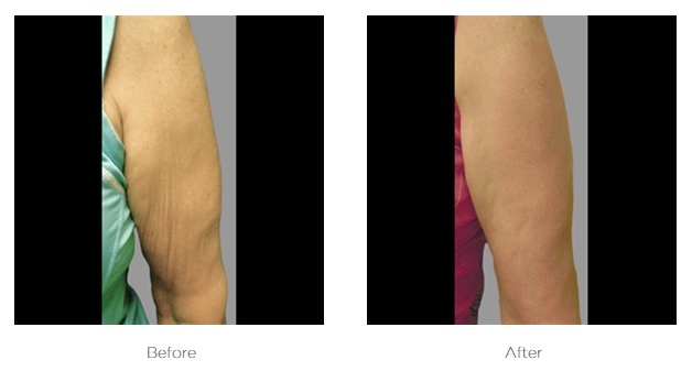 Exilis_Before_and_After_Arm