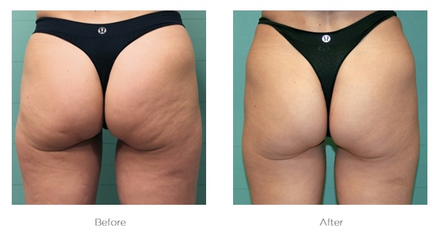 Exilis_Before_and_After_Buttocks