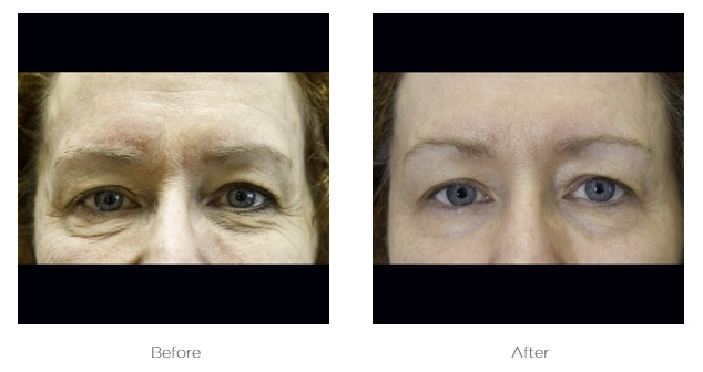 Exilis_Before_and_After_photos_Eyes