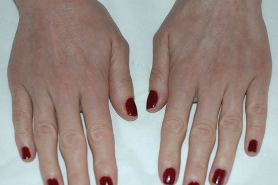 Female Hand Rejuvenation After Redexis