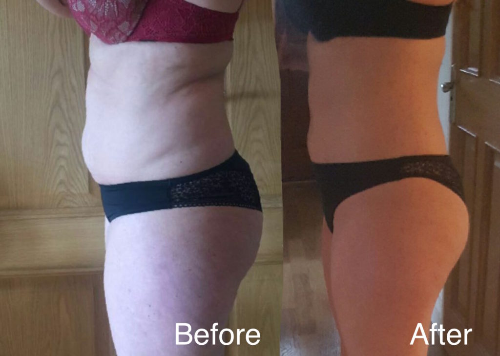Before and After LipoContrast Female