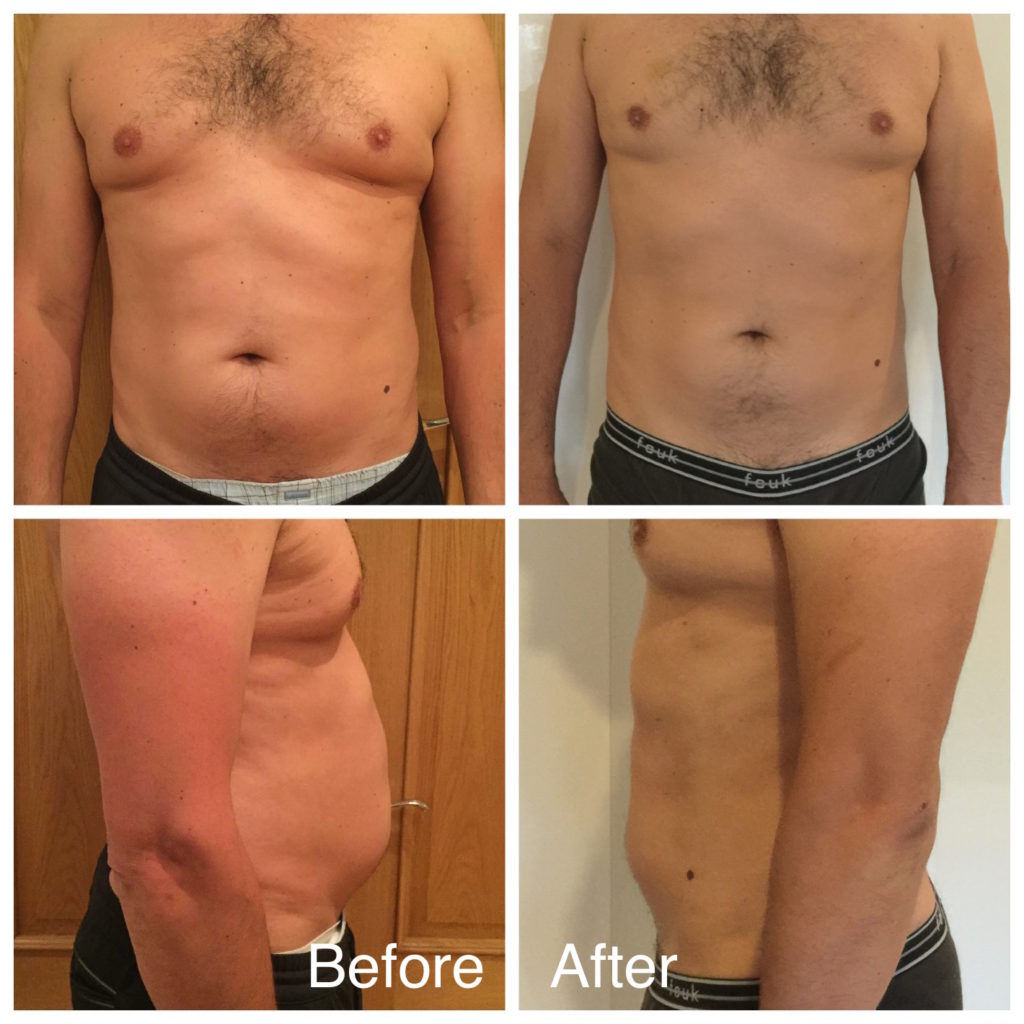 LipoContrast Before and After Male