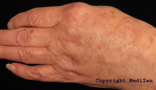 After treatment with Radiesse for hand ageing