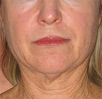 Before EndyMed Radiofrequency treatment