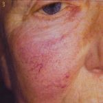 A picture of a cheek before having the veinwave treatment
