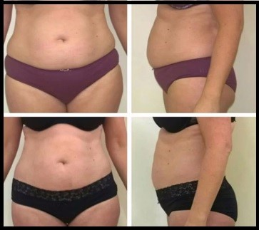 Before and After Cavitation Treatment