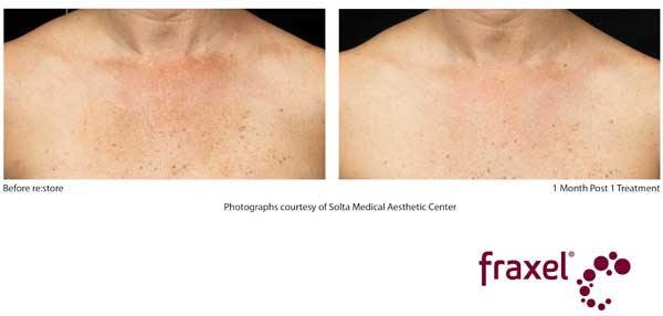 Before and After Fraxel Treatment - Chest (Decolletage)