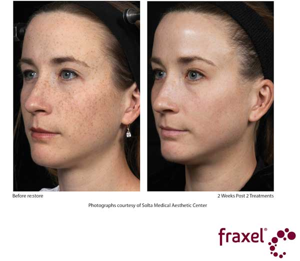 Before and After Fraxel treatment - Face