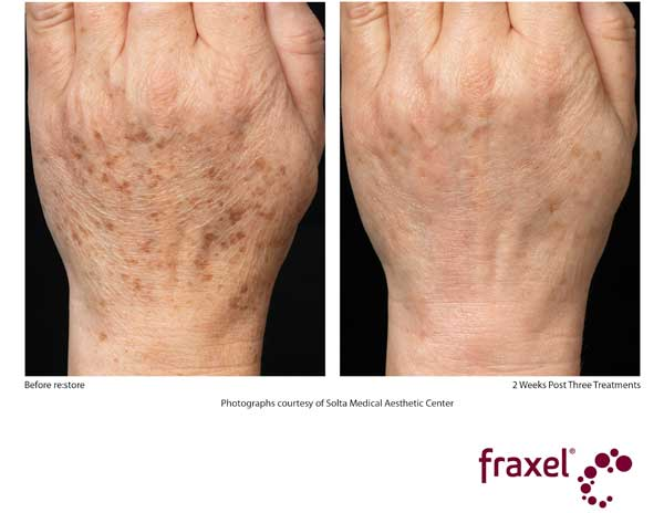 Before and After Fraxel Treatment - Hands