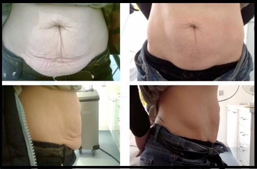 Before and After Radiofrequency Treatment