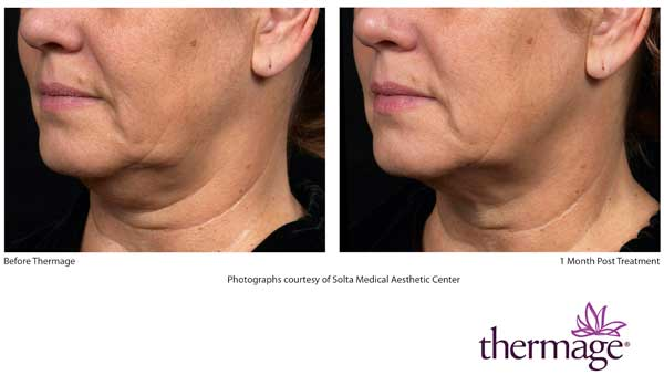 Before and After Thermage Neck Treatment