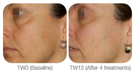 Viscoderm Treatment for Skin Brightness