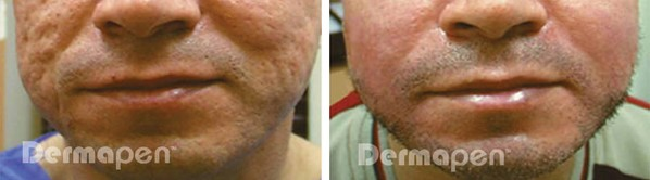 Before and after Dermapen on Acne scarring
