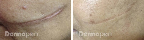 Before and after Dermapen on cut scar