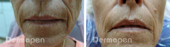 Before and after Dermapen on a womans lips