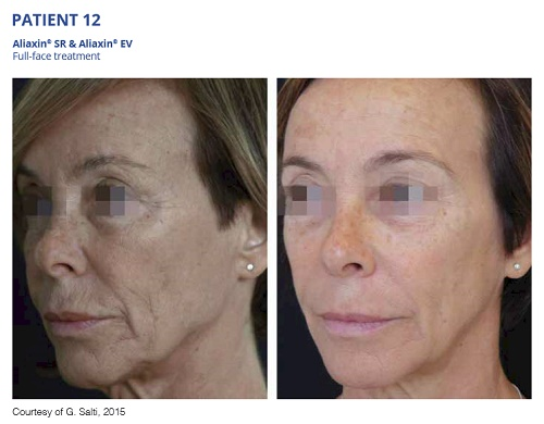 Aliaxin SR and EV Before and After Full Face