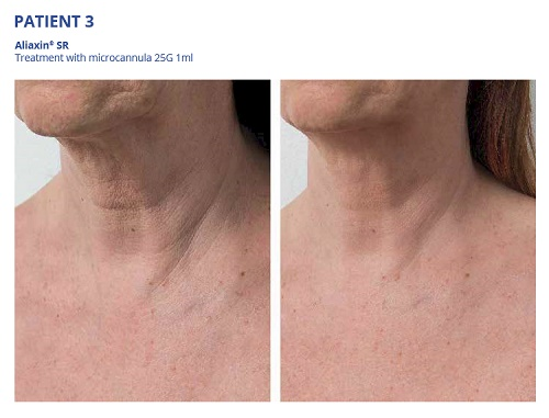 Aliaxin SR Before and After Neck