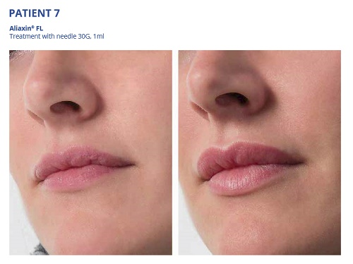 Aliaxin FL Before and After Lips