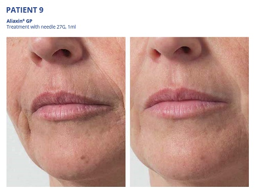 Aliaxin GP Before and After Mouth Lines