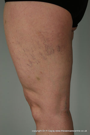 Thread veins in the leg before sclerotherapy
