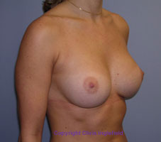 After Breast Augmentation (Implant) Surgery